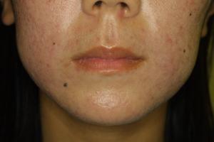 antibiotics for acne list #11